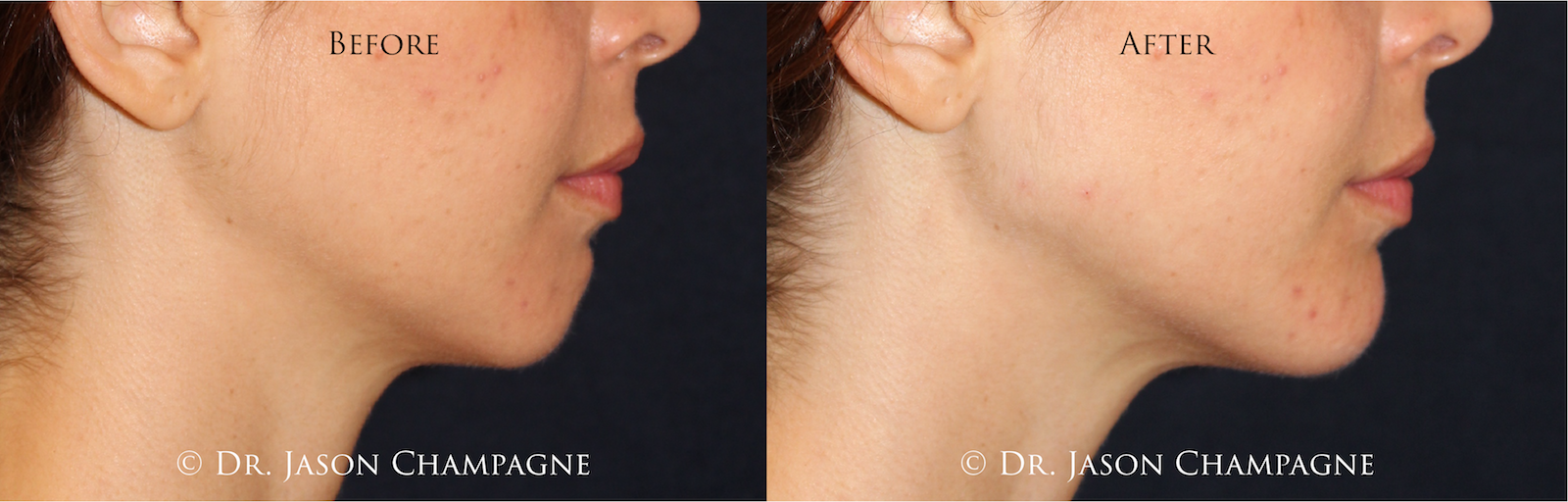 Dr. Jason Champagne Custom Facial Filler Before and After Chin Contouring