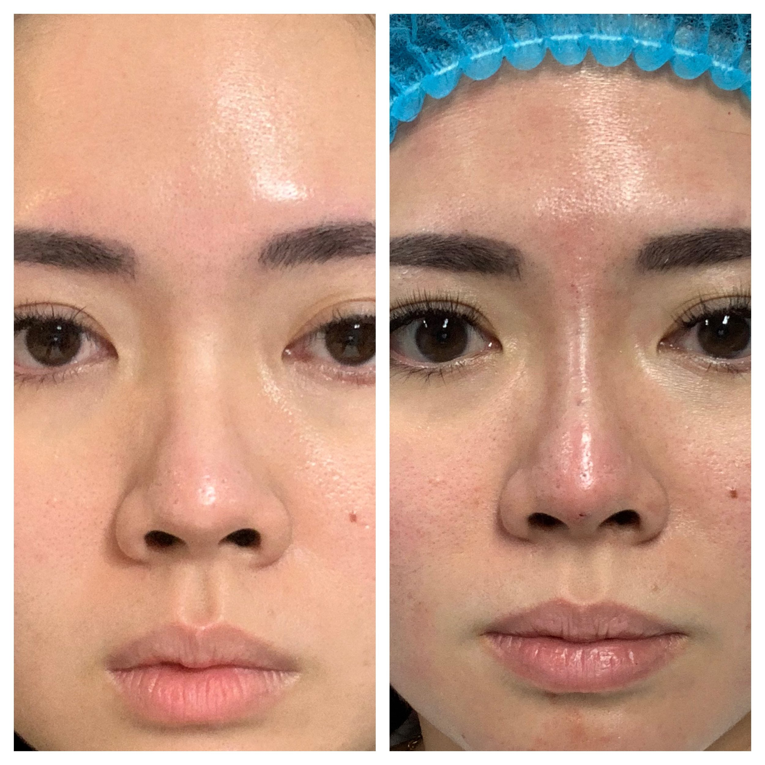 Before/After - Immediately after procedure