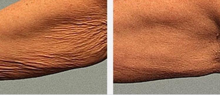 crepey skin.JPG