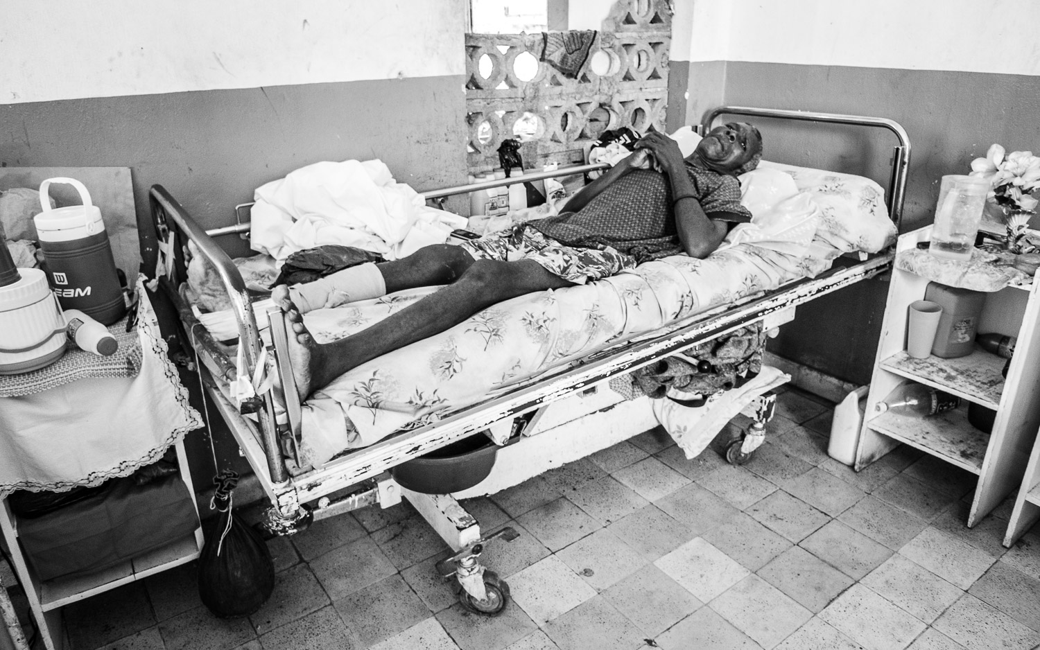 Patient with femur fracture waiting for surgery.