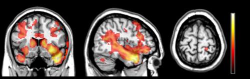 Bilder på hjärnan tagna med magnetkamera