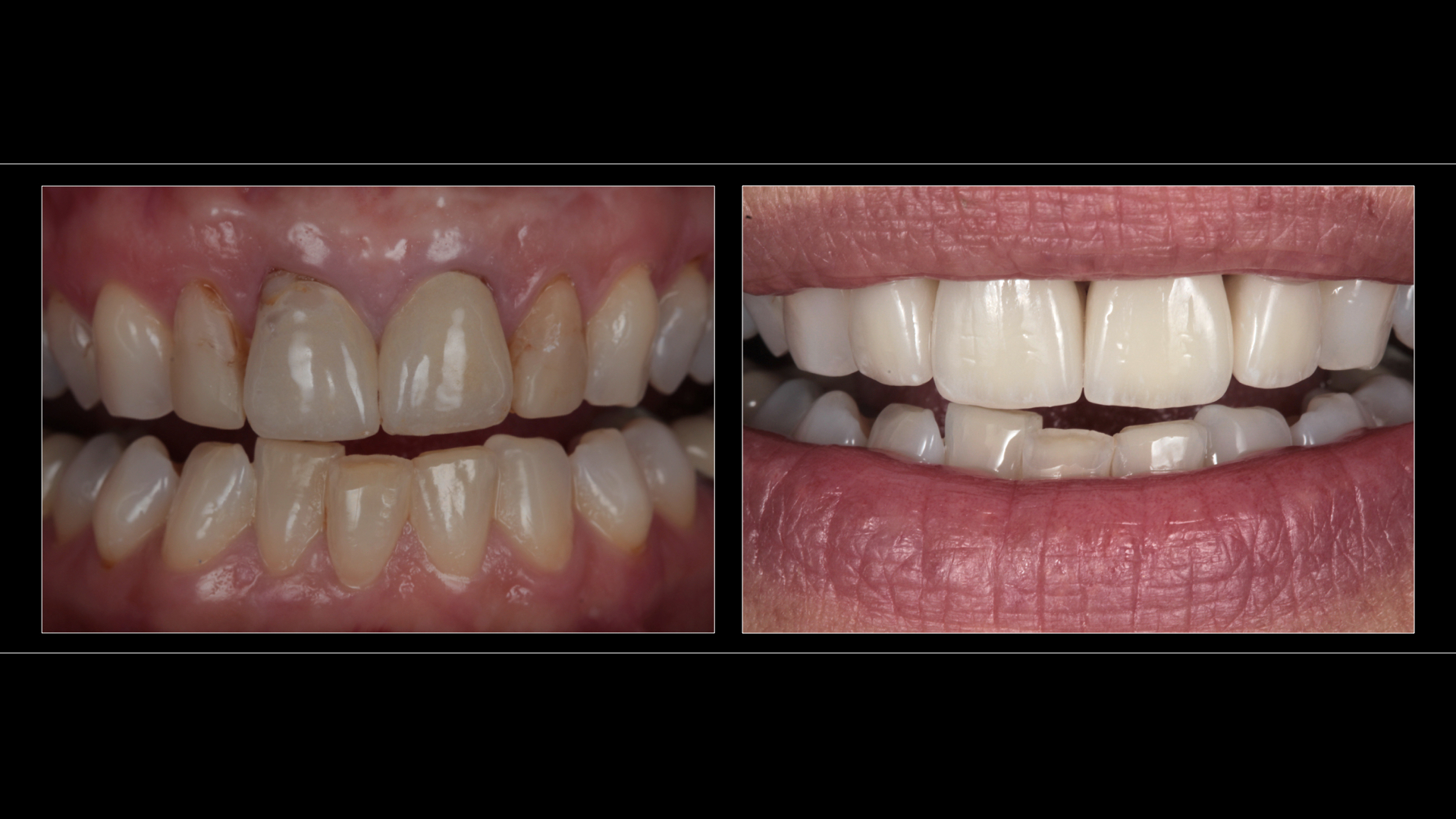 All-Ceramic Crowns (4 Upper Incisors)