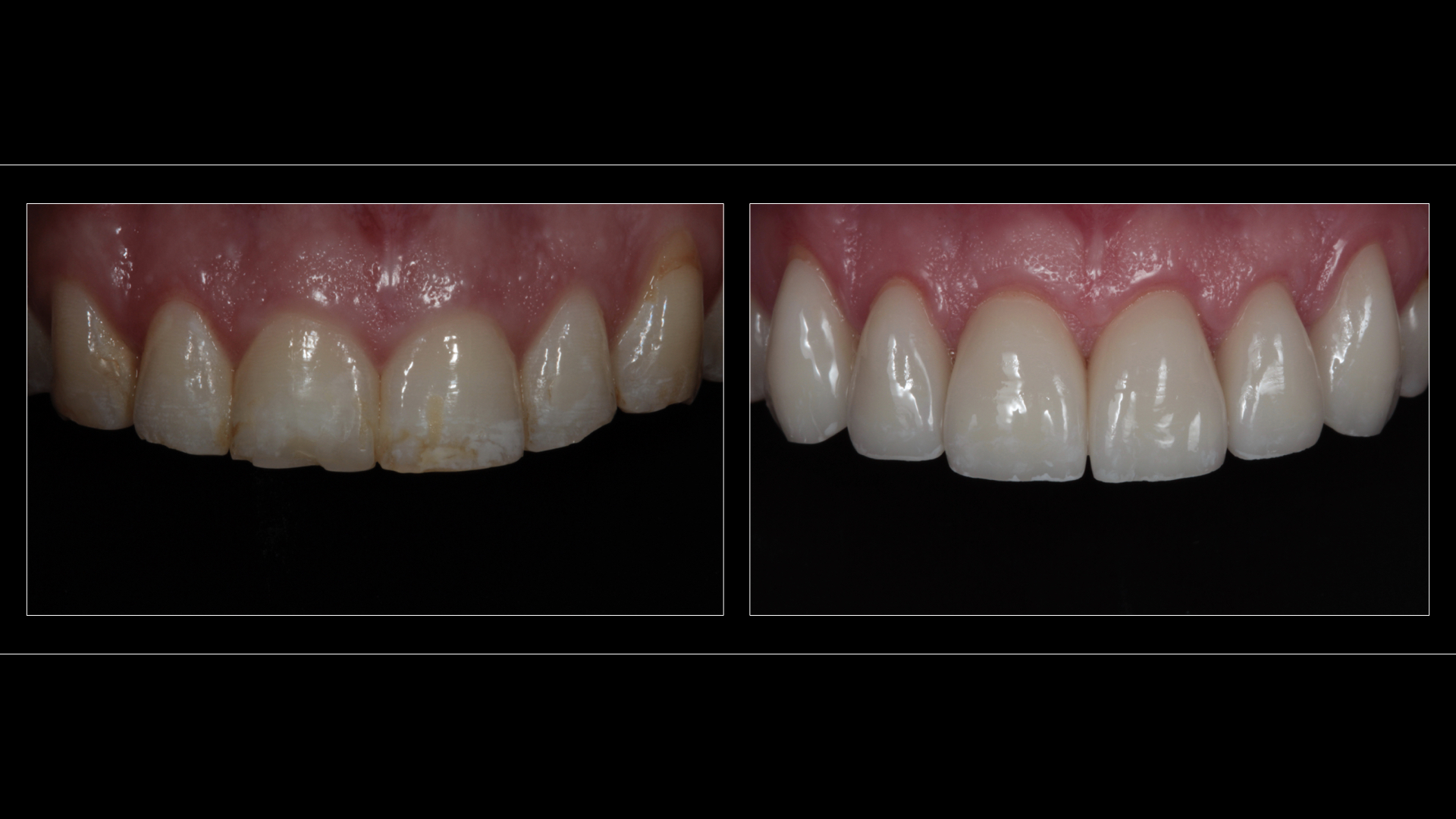 All-Ceramic Crowns (6 Teeth: 2 Upper Canines / 4 Incisors)