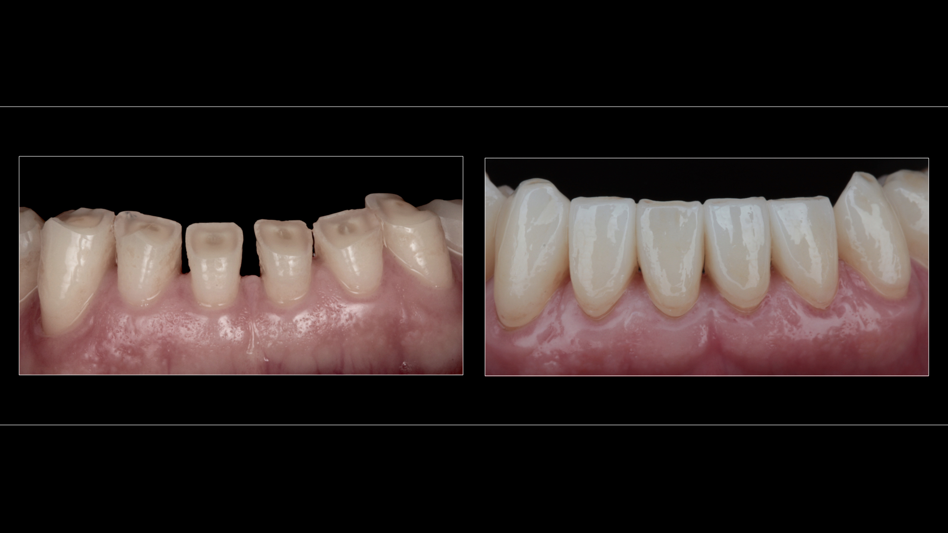 Full-Contour All-Ceramic Zirconia Crowns (Tooth Loss Caused By Tooth Grinding / Erosion)