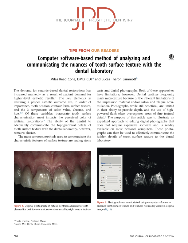 Computer Software Method of Analyzing Tooth Surface Texture w/ the Lab -