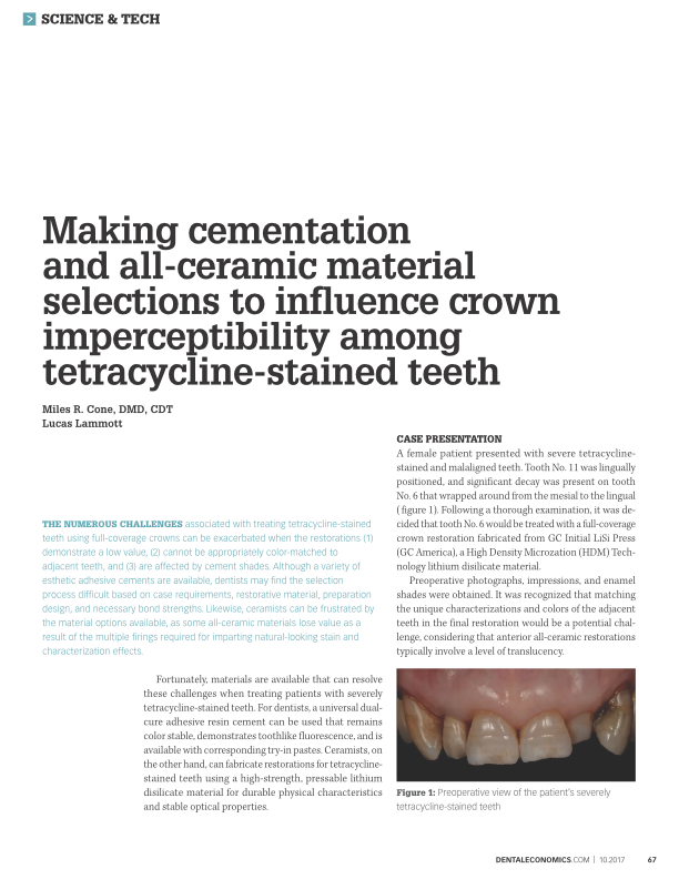 Treating Tetracycline-Stained Teeth: Material Selections -