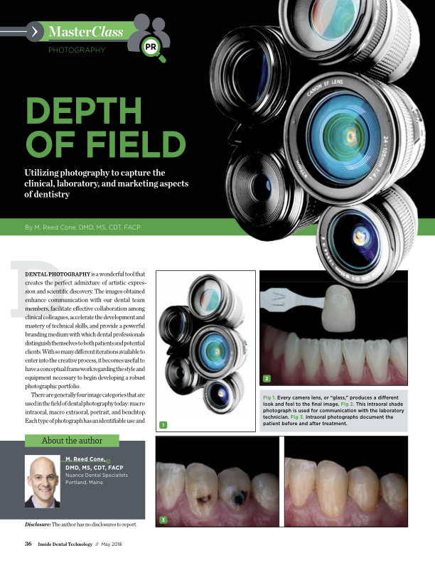 Depth of Field: Making Dental Photography Easy for Everyone -