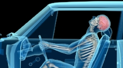 Whiplash as well as many other car                          accident injuries