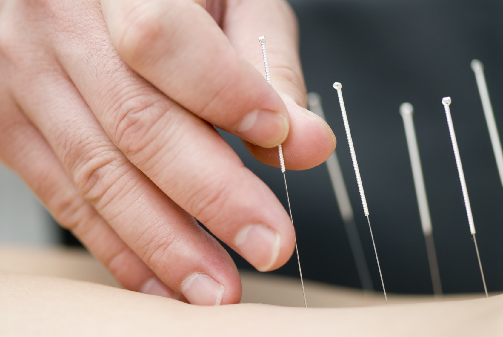 ACUPUNCTURE  Acupuncture is system of health that was developed over 3000 years ago. For one reason or another, the energy in our bodies becomes dysfunctional. To restore our body's natural balance of energy, needles are inserted at different parts of the body to facilitate healing and relieve pain.