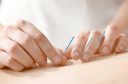 How does Acupuncture work? Beech Street Health Centre