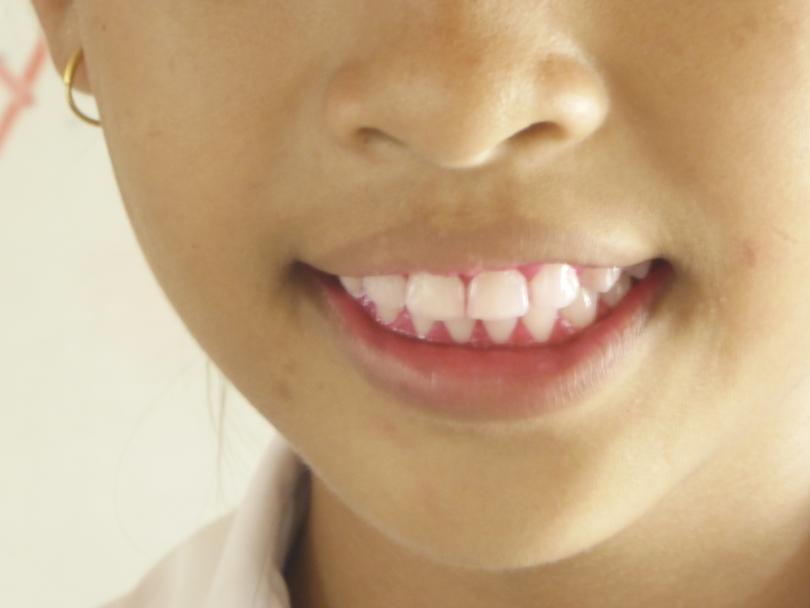 isha teeth.jpg
