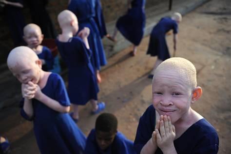 albinos.jpg