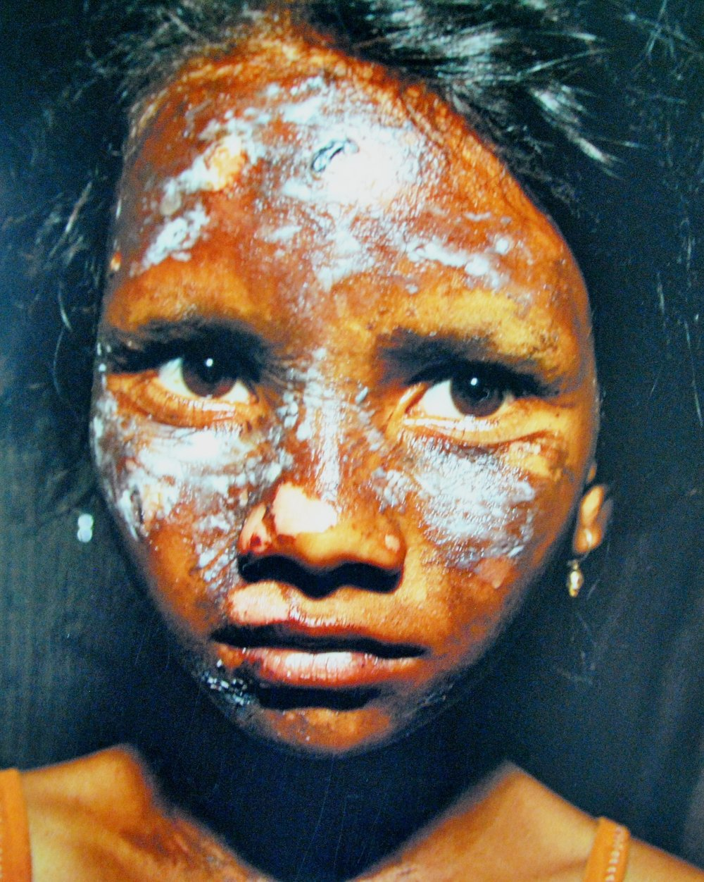 Namrata Nayak, a 10-year-old Dalit from the Christian community in Kandhamal, became the victim of Hindu extremists in 2008. Her face was disfigured by a bomb thrown by the mob. Photo by Vishal Arora.