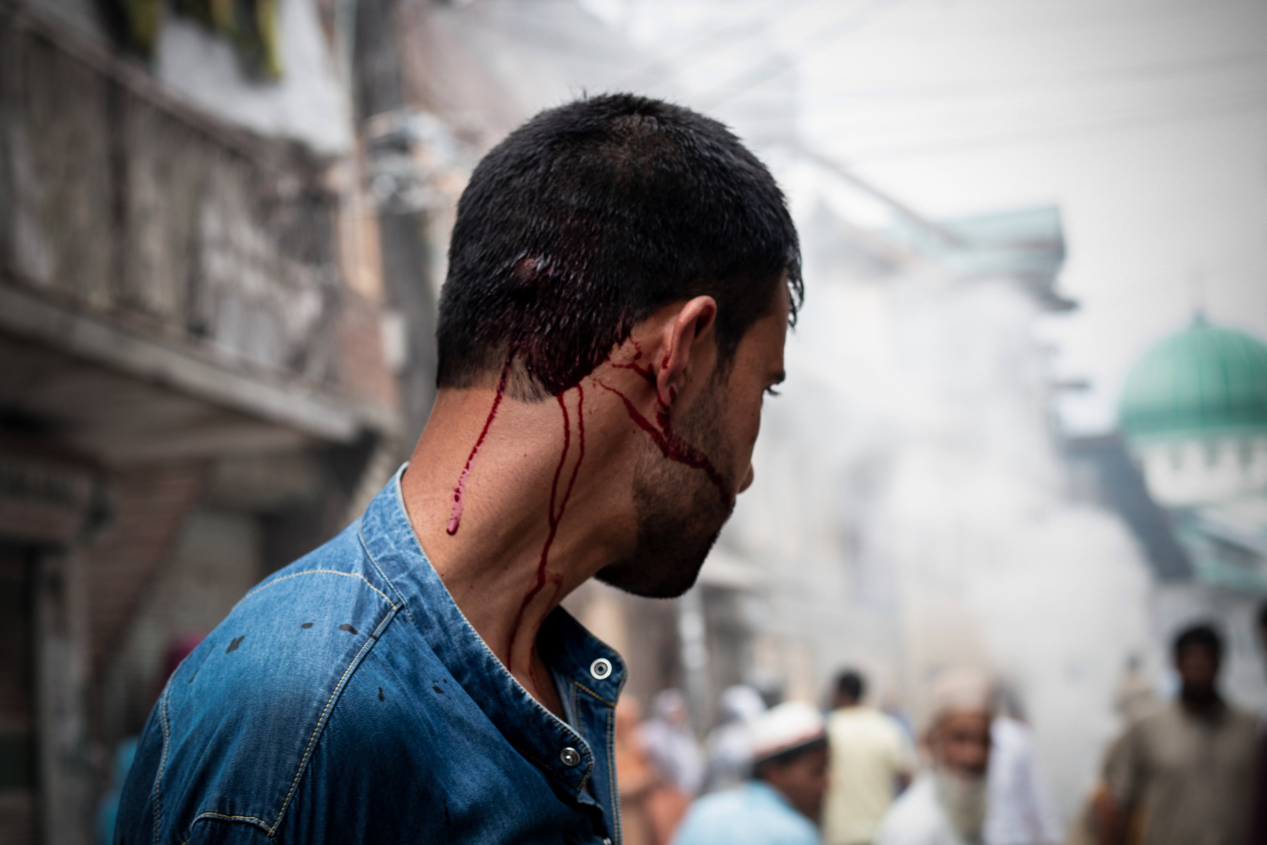A victim who was hit by a lead pellet in his head. The fight which continued for hours left many protestors injured. Photo by Avinash Giri.