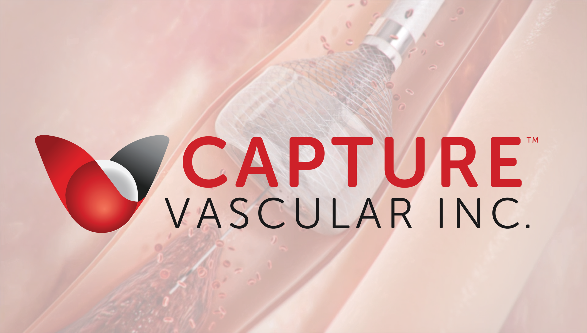 Capture's proprietary MegaVac Mechanical Thrombectomy System offers several unique features in one simple device.