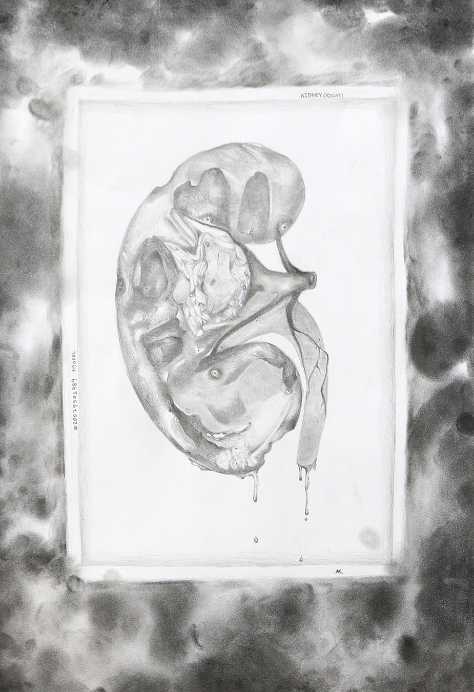 AKrueger_kidney.jpg