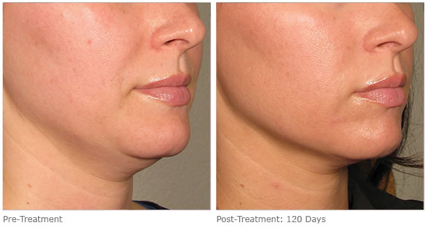 ultherapy-before-after-lower-face-7.jpg