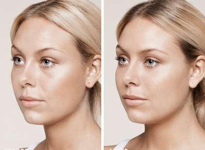 Dermal-filler-Restylane-before-after-3-compressed.jpg