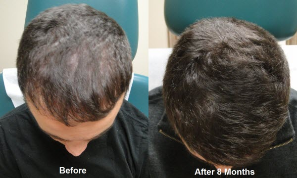 prp-hair-before-and-after.jpg