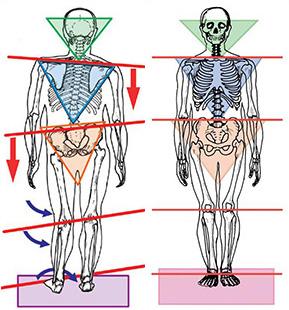 body-alignment.jpg