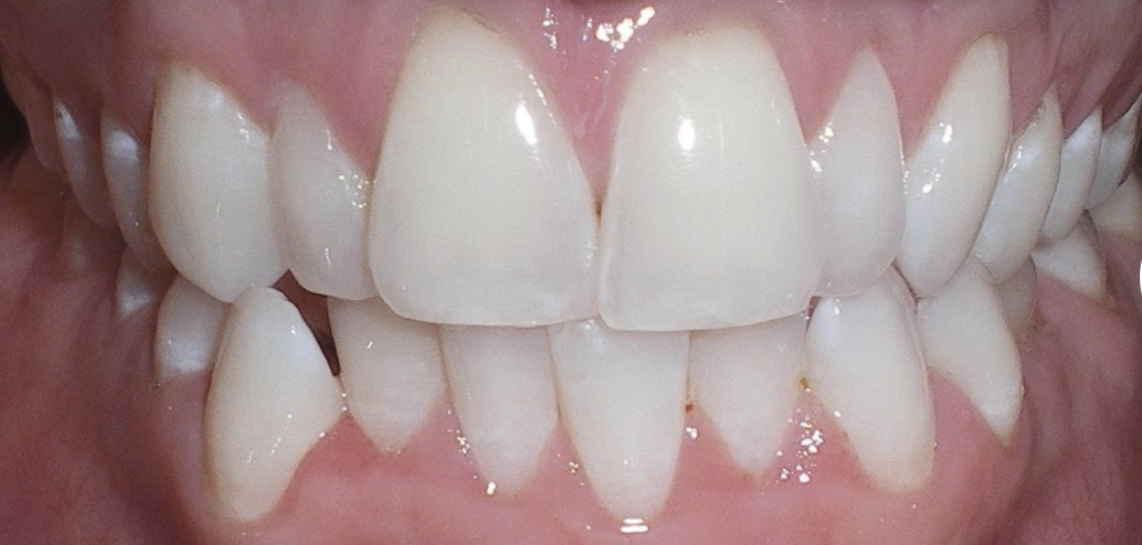 teeth1.png