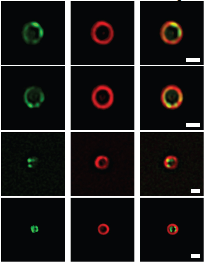 Figure 2. Images of the divisome ring as it constricts an  E. coli  cell. The FtsZ protein is labelled green and FtsN is labelled red.