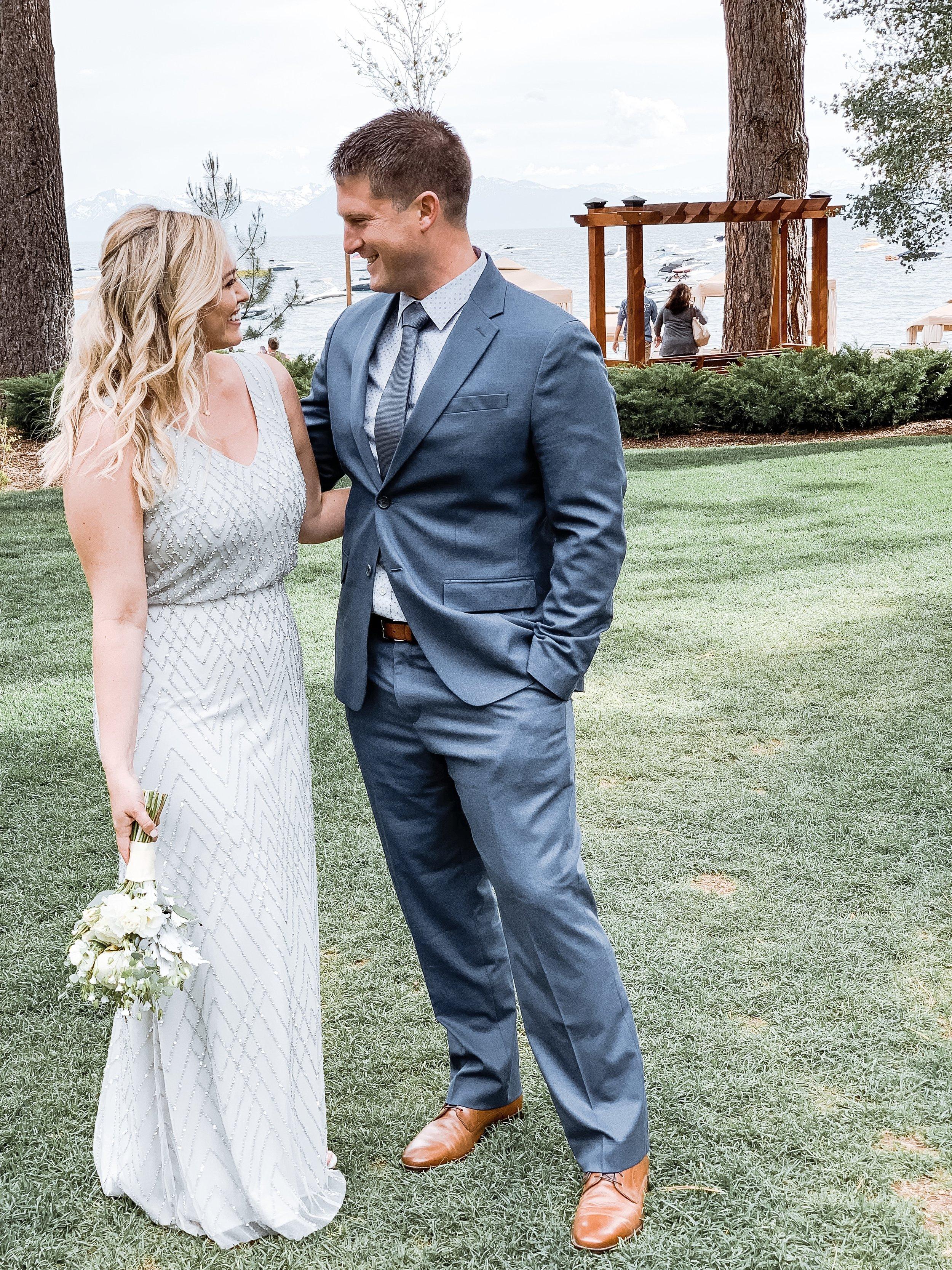 coolsculpting wedding results.JPG
