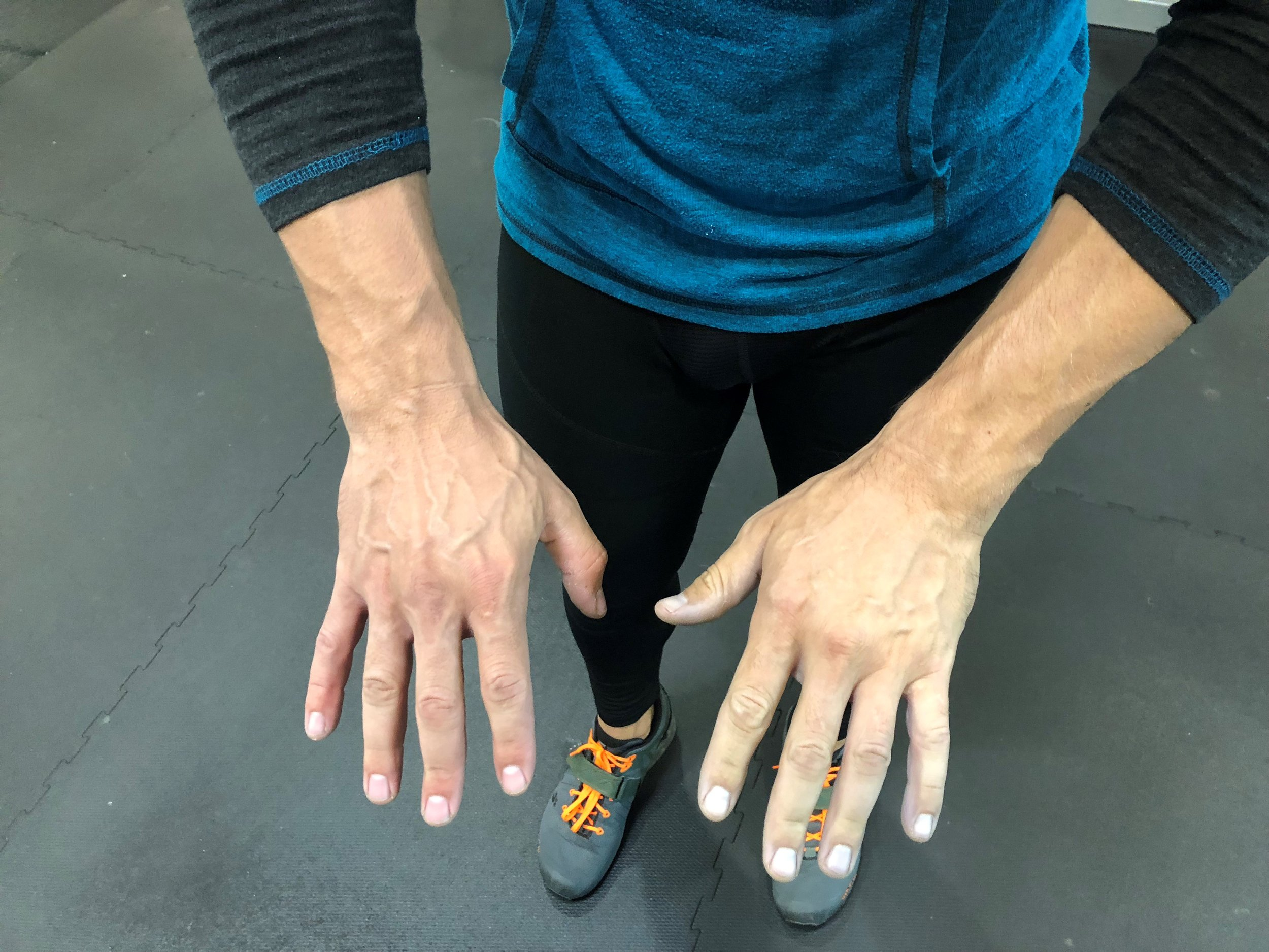 left hand was wrapped too tight which is identifiable by pale coloration, and sometimes less vascularity.