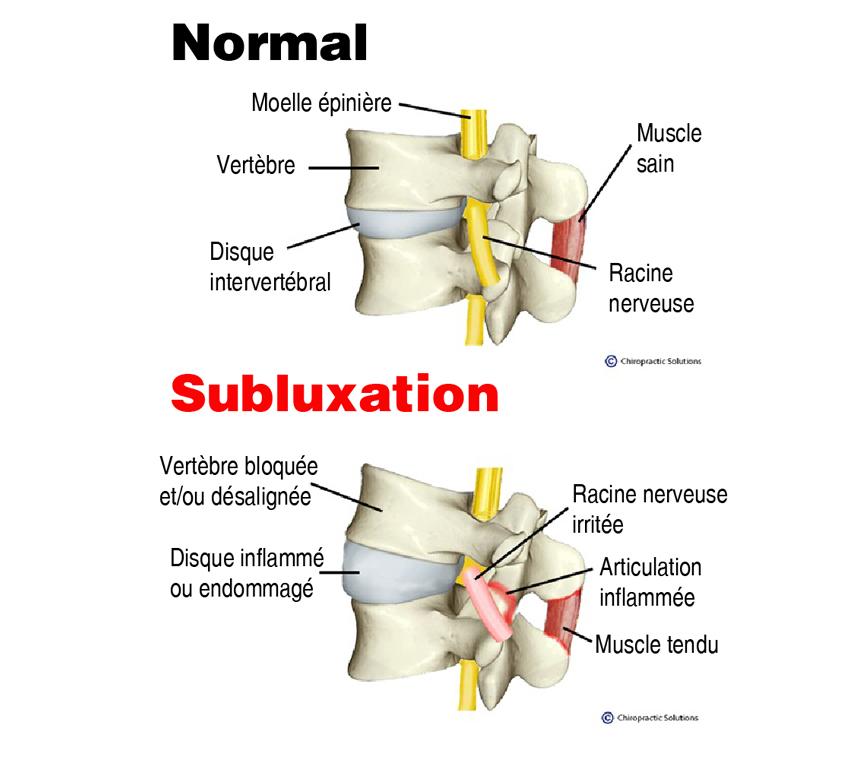 subluxation vertébrale