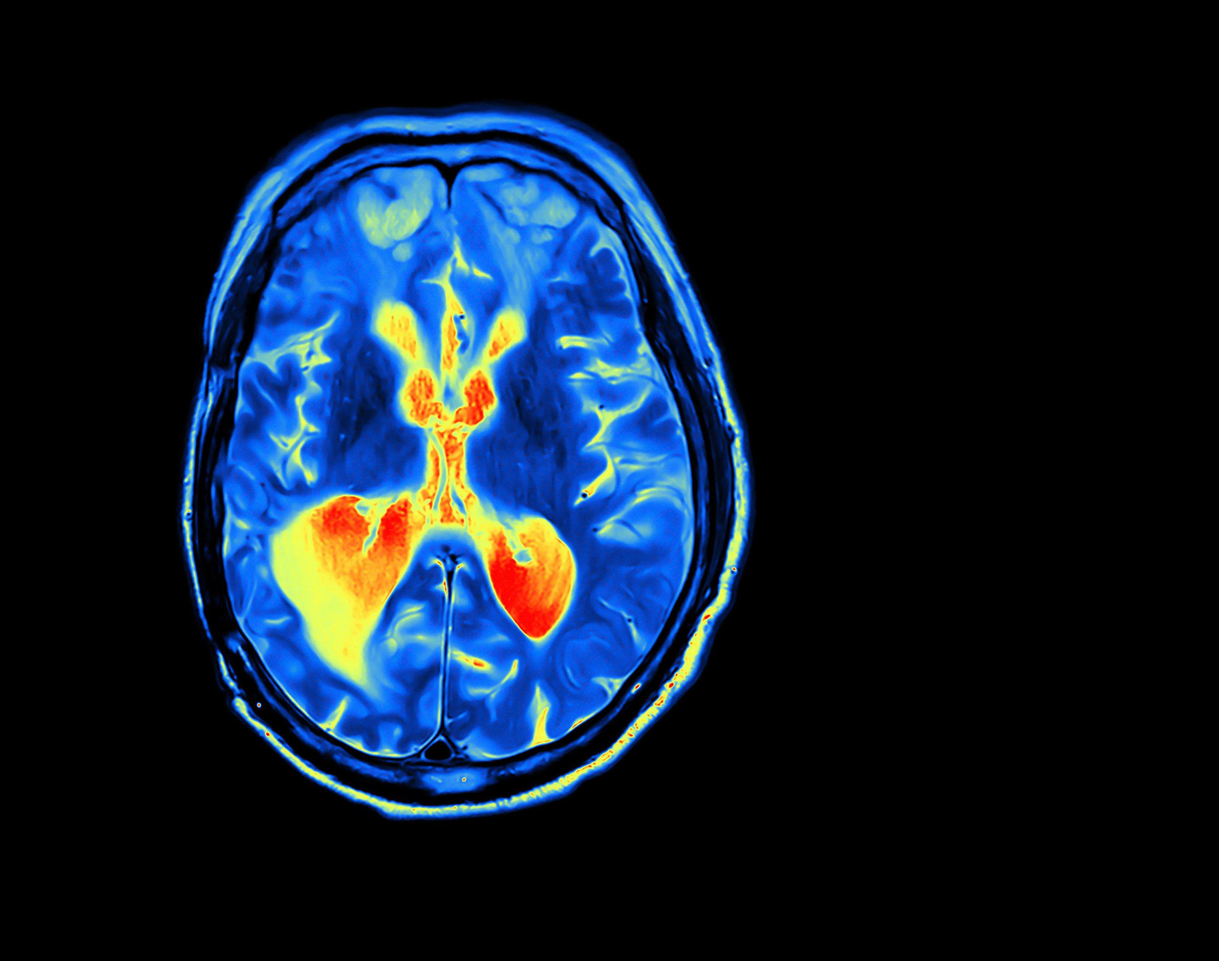 Das Hirn ist ein Muskel - Ja, unser Gehirn funktioniert wie ein Muskel. Das ist super: Denn wie im Fitness-Center können Sie mit den richtigen Methoden das Hirn besser trainieren,um noch mehr Power zu entwickeln.Und wie im Sport gilt auch hier: Sie müssen Ihr Gehirn (kreativ) aufwärmen und die verschiedenen Phasen der Anspannung und Regeneration berücksichtigen.All dieses Wissen nutzt das JOHNYETI® Training.