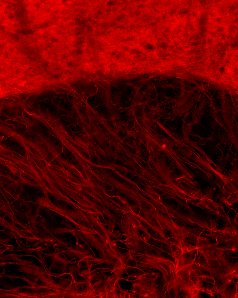 axons.png