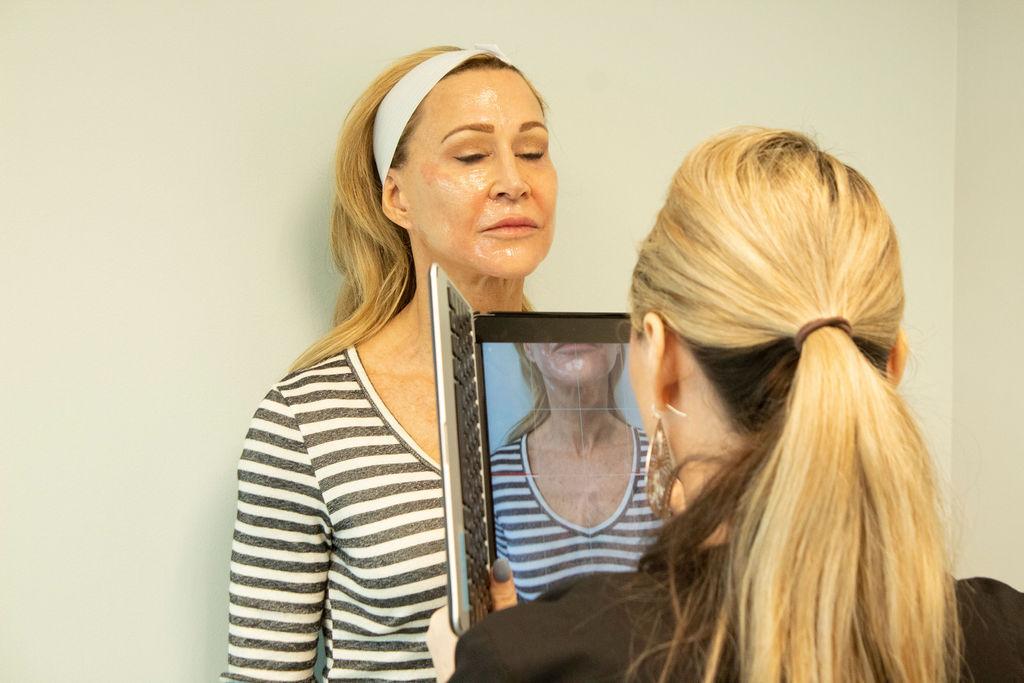 Halo Laser Facial Treatment - Crazy Blonde Life