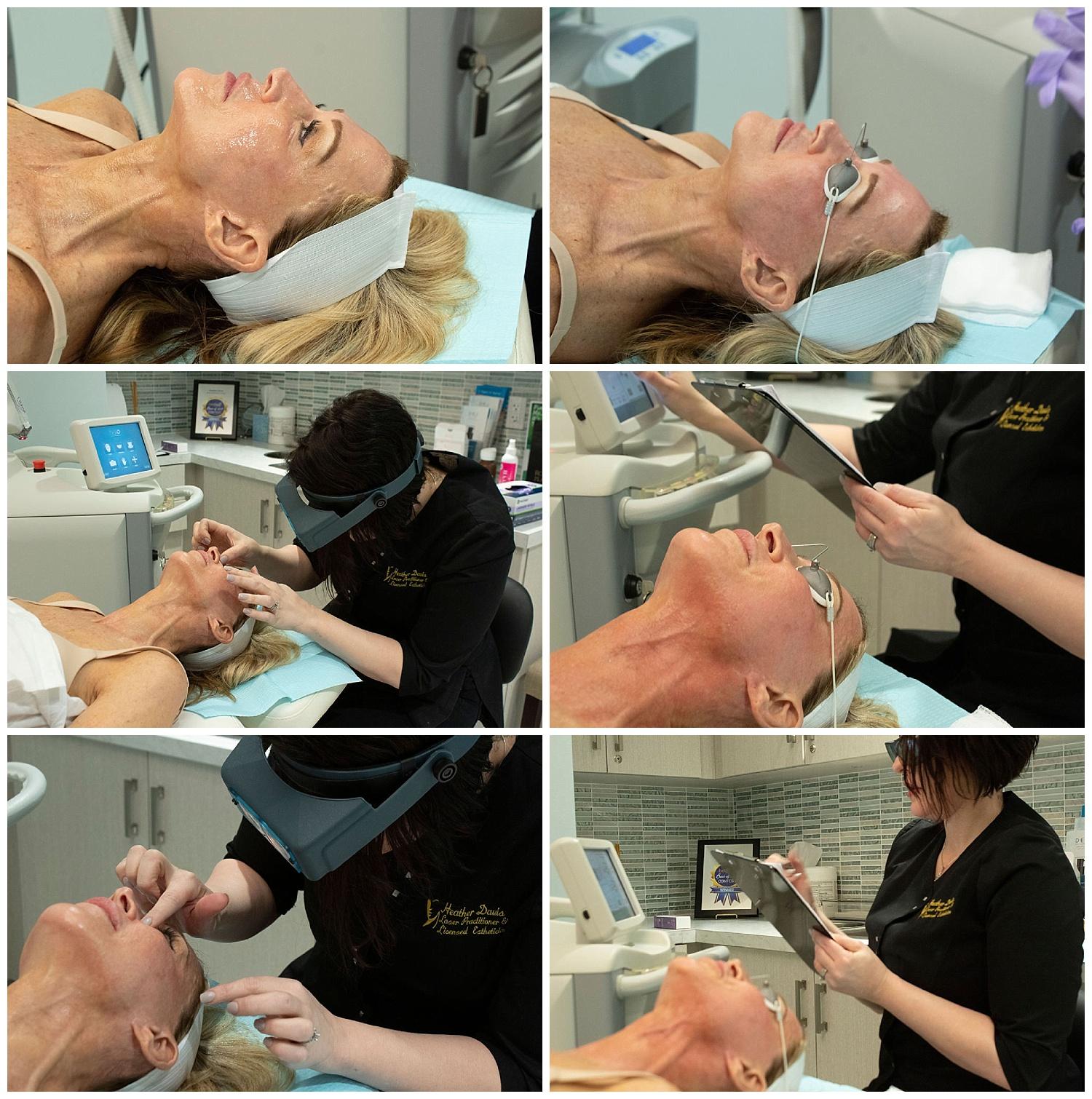 2019-04-02_0002.jpgHalo Laser Facial Treatment - Crazy Blonde Life