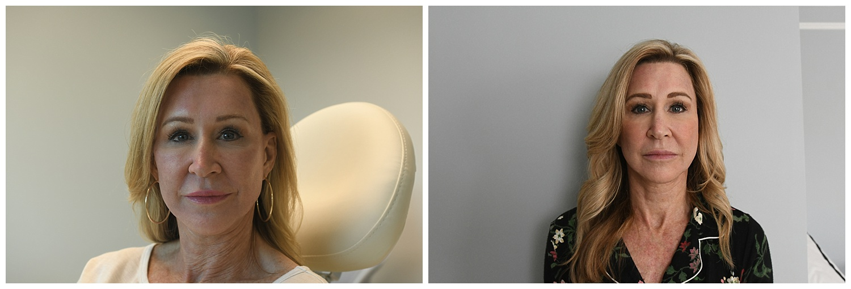 Halo Laser Facial Treatment