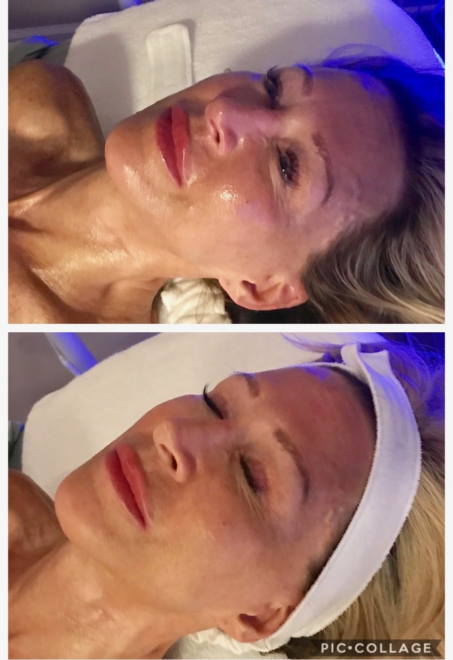 HydroFacial Pictures - Crazy Blonde Life