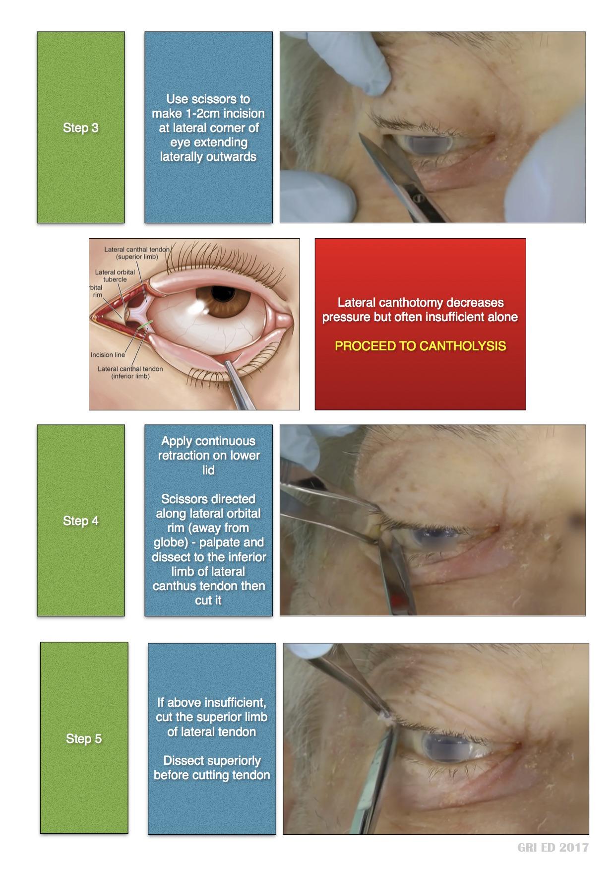 Canthotomy JPEG 2.jpg