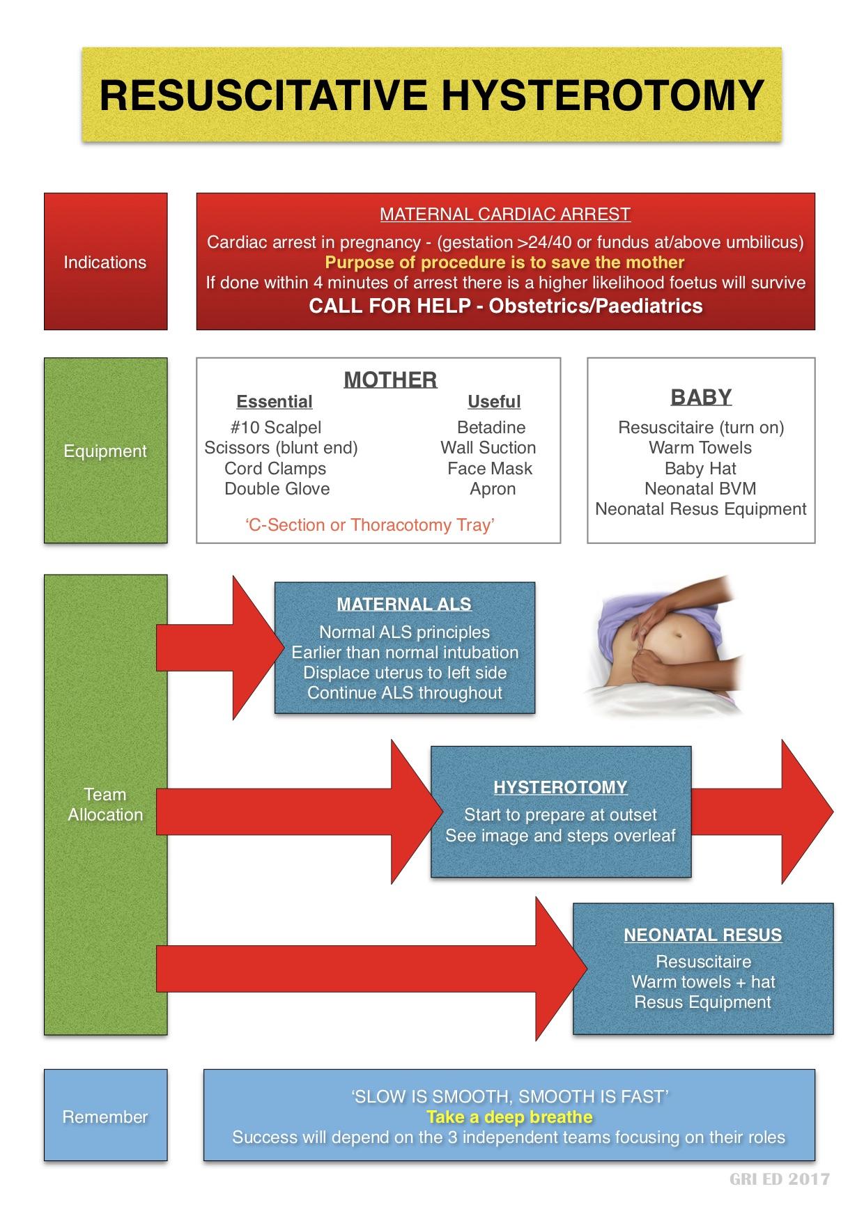 Resuscitative Hysterotomy1.jpg