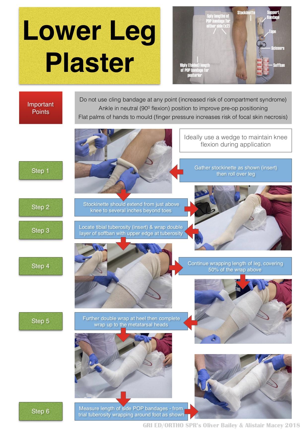 LOWER LEG PLASTER1.jpg