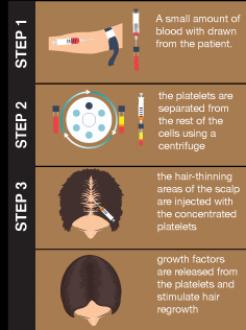 Procedure-Steps.png