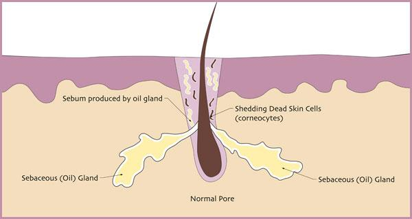 What is Acne? - For most people, acne is an inherited condition of the pores. When someone is prone to acne, their pores clog with dead skin cells much faster than normal. Healthy pores shed about one layer of dead skin cells per day inside the pore, but acne-prone pores shed up to five layers of dead skin cells per day.