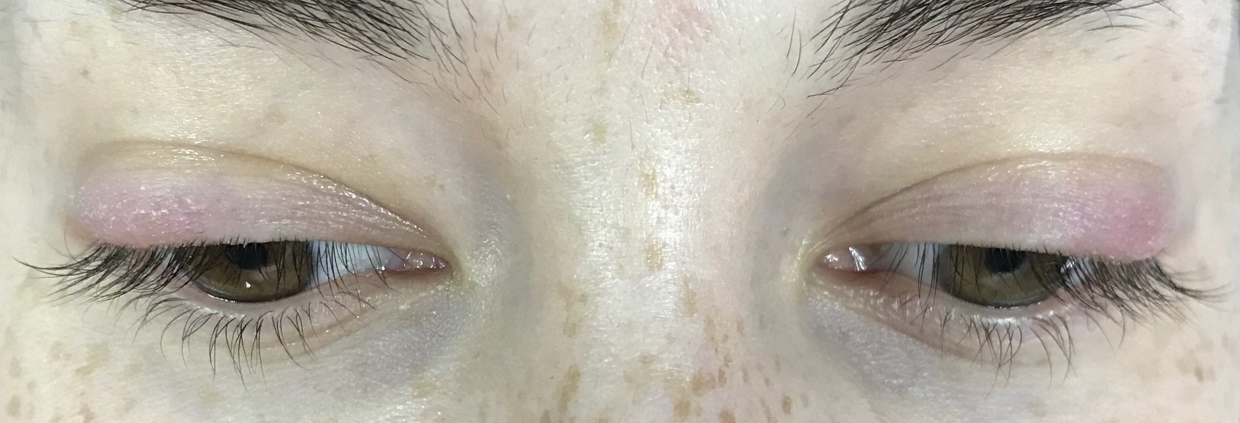 Lash reaction. - Swelling on eyelids from test patch.  Imagine if she had a full set without testing?  Her eyes would have been swollen shut!