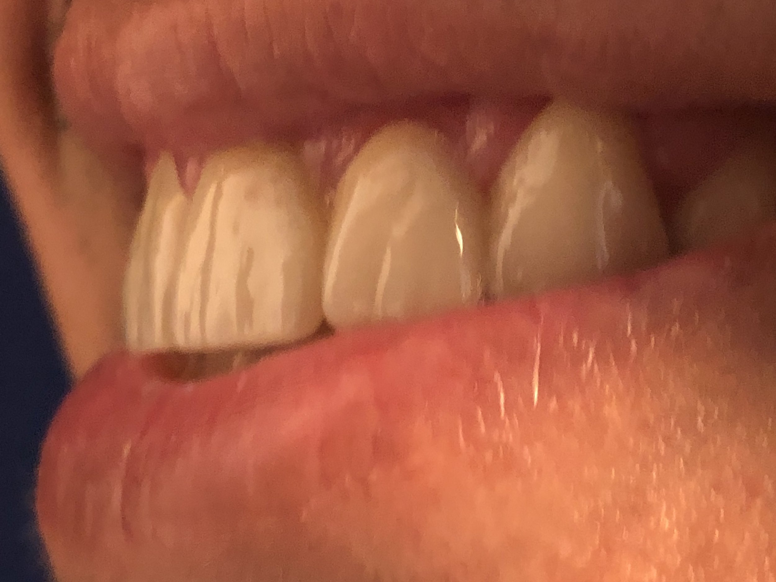 Extremely natural crowns - Aguilera Laser Dental
