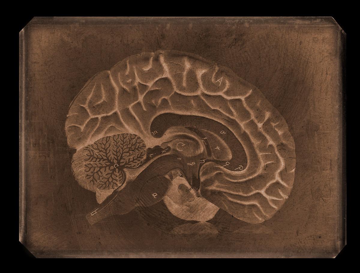 Brain Tin