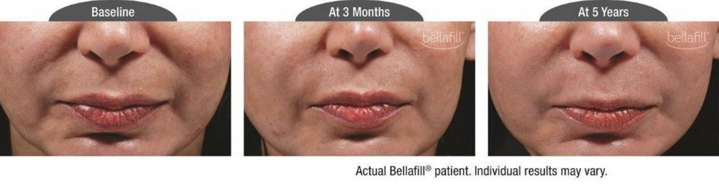 Bellafill_cosmetic_nasolabial_b&a.JPG