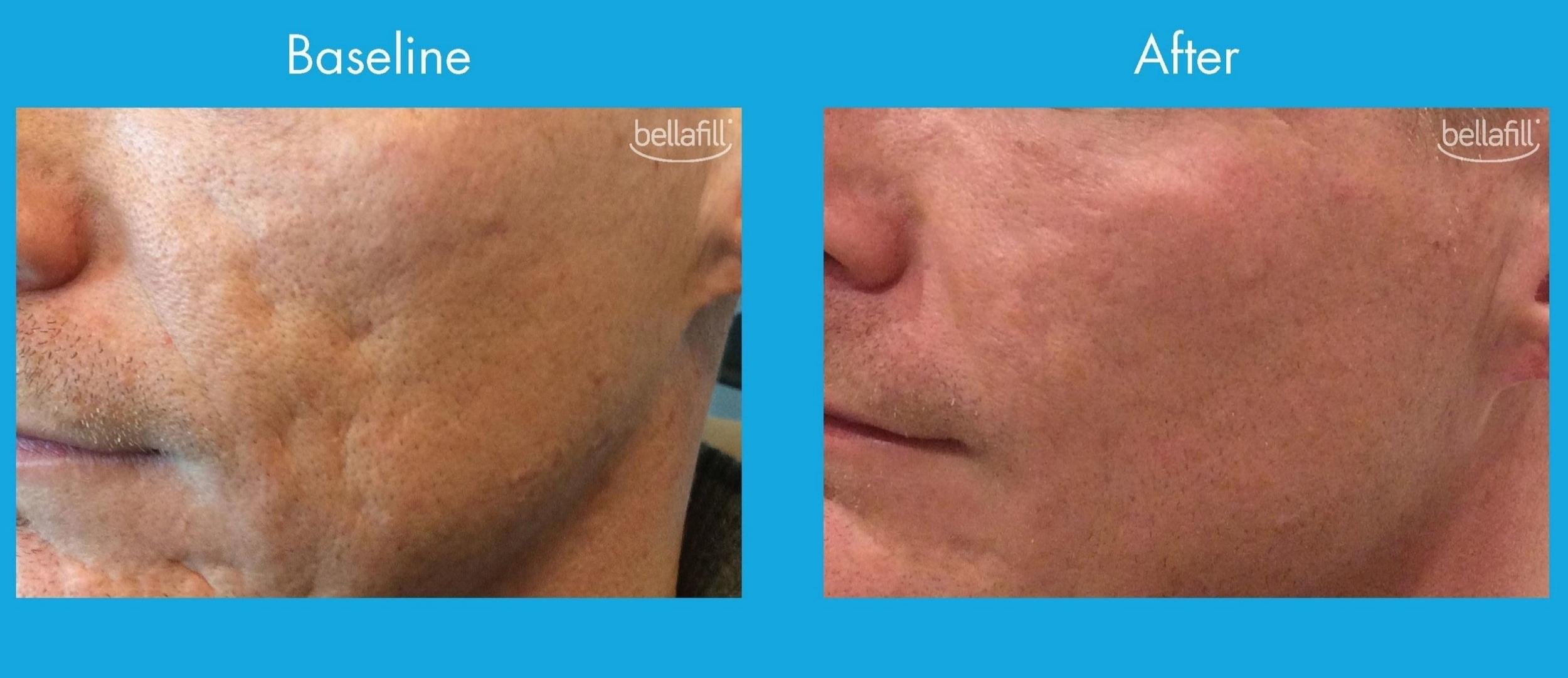 Bellafill_acne6.JPG