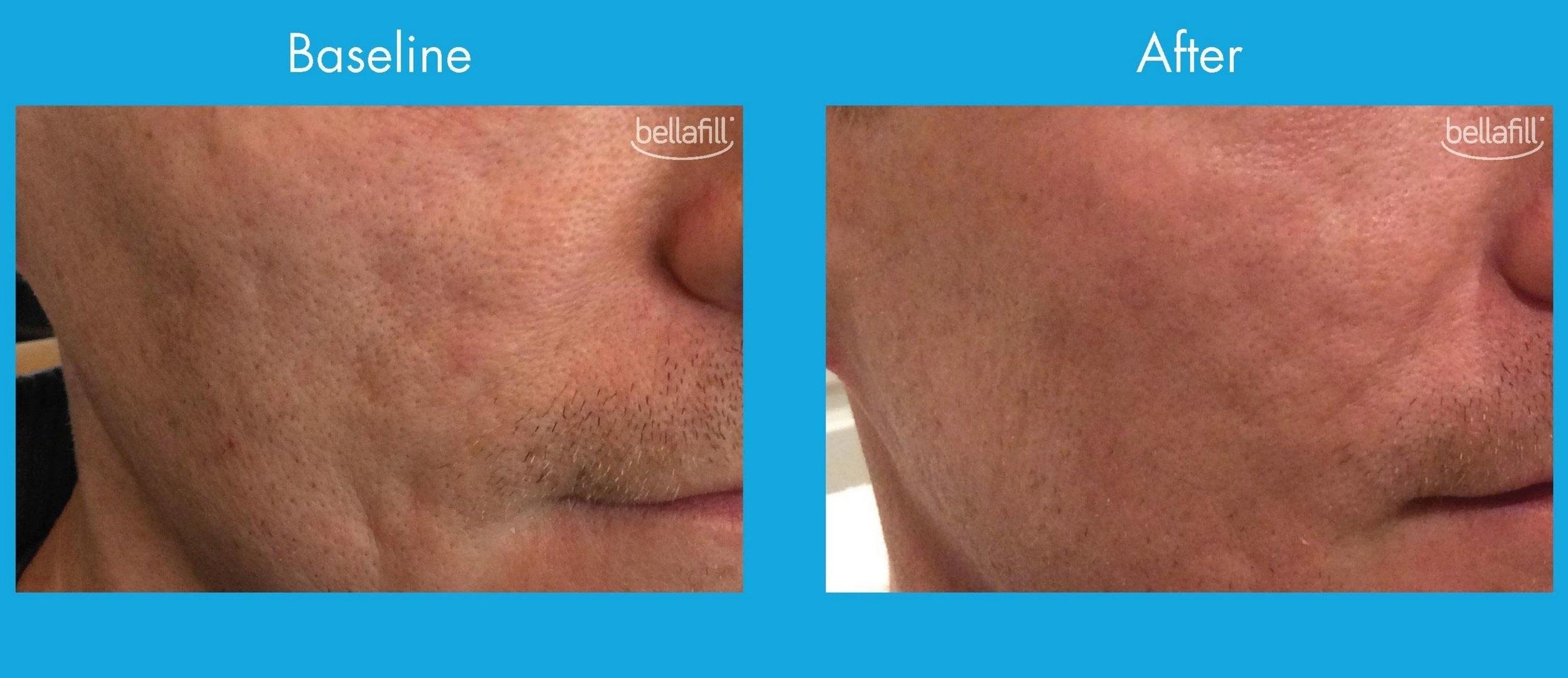Bellafill_acne7.JPG