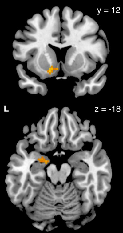 Figure from Maier et al. (2014) showing activity in the striatum (up) and amygdala (lower) during the choice task