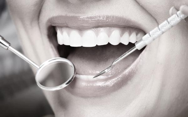 Close-up of dental examination