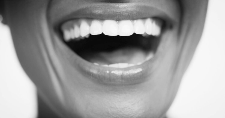 Close-up of healthy, straight teeth following discreet adult braces
