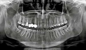 Picture of dental X-ray for accurate assessment